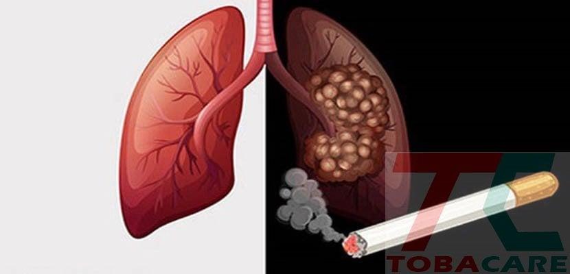 Ung thư phổi chỉ vì khói thuốc lá