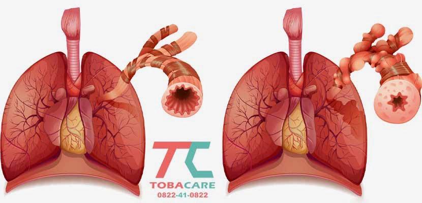 Ảnh hưởng của thuốc lá đối với hệ hô hấp