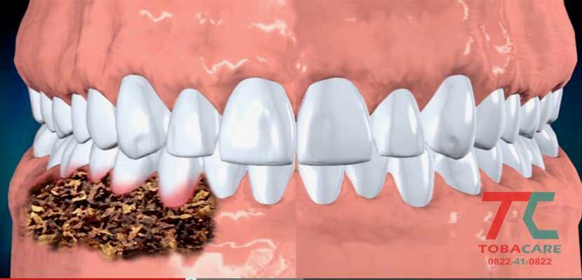 Tác hại của thuốc lá không khói đến răng miệng