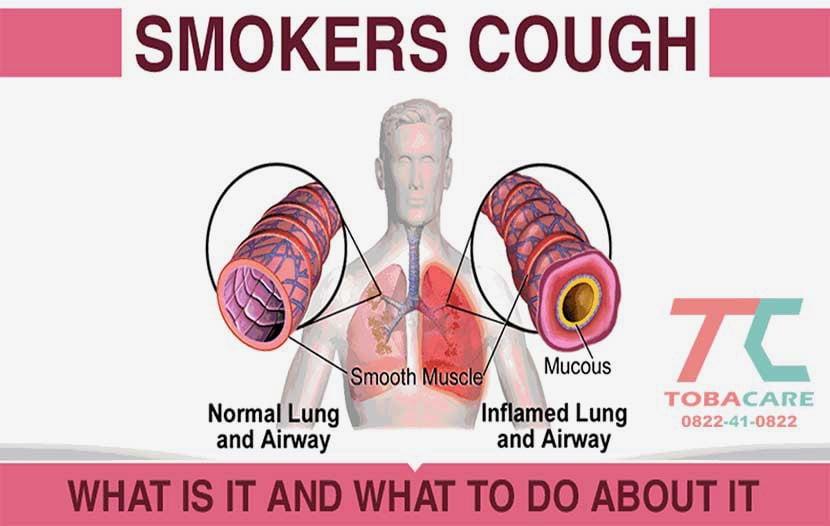 Ảnh hưởng của thuốc lá đối với hệ hô hấp như thế nào