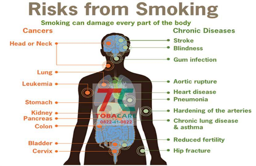 Các loại ung thư mà thuốc lá ảnh hưởng