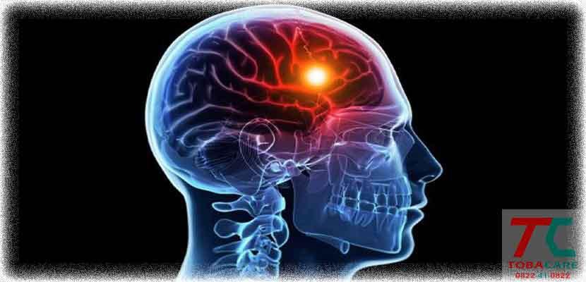 Thuốc lá làm giảm khối lượng bộ não