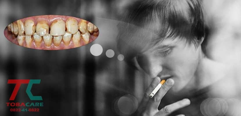 Răng miệng sẽ bị ảnh hưởng xấu khi hút thuốc lá