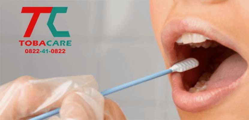 Nicotine tồn tại trong răng miệng bạn bao lâu?