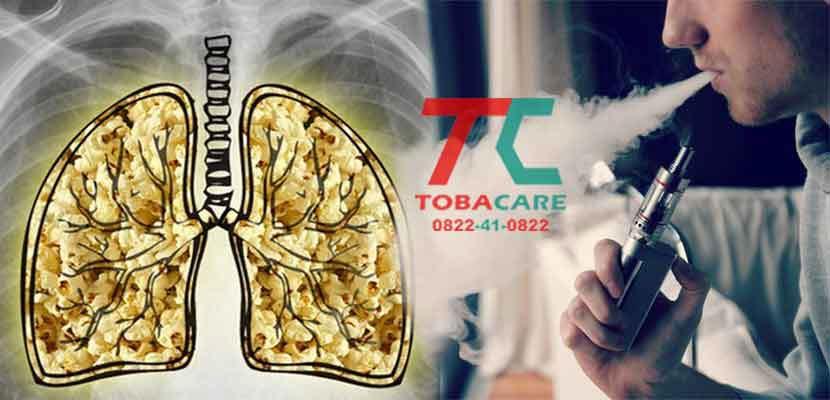 hút thuốc lá điện tử gây ra hiện tưởng phổi bỏng ngô