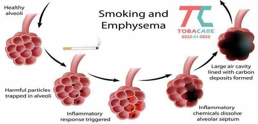 Điều gì xảy ra khi bạn hút thuốc lá