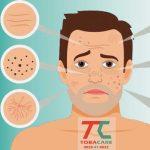 Ảnh hưởng của thuốc lá đối với làn da như thế nào