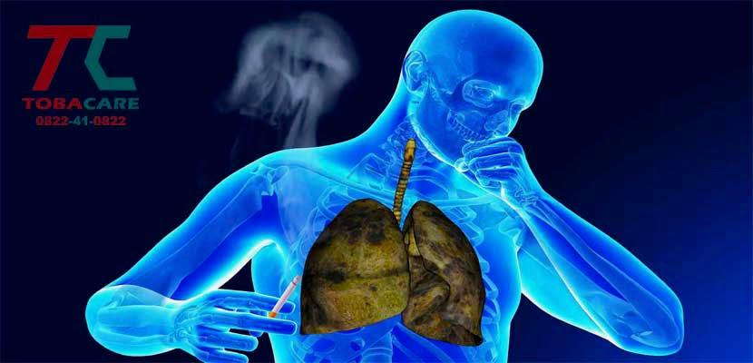 Tại sao khi hút thuốc lá ho nhiều hơn so với người không hút thuốc