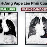 Thuốc lá điện tử ảnh hưởng đến phổi bạn như thế nào
