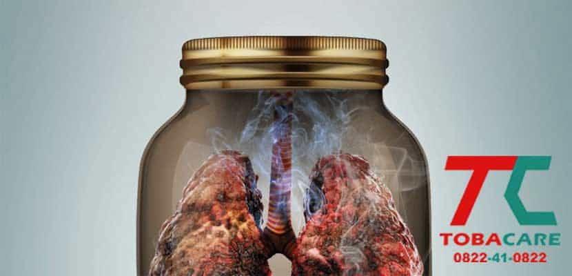 Thuốc lá nhẹ có gây ung thư như thuốc truyền thống không?