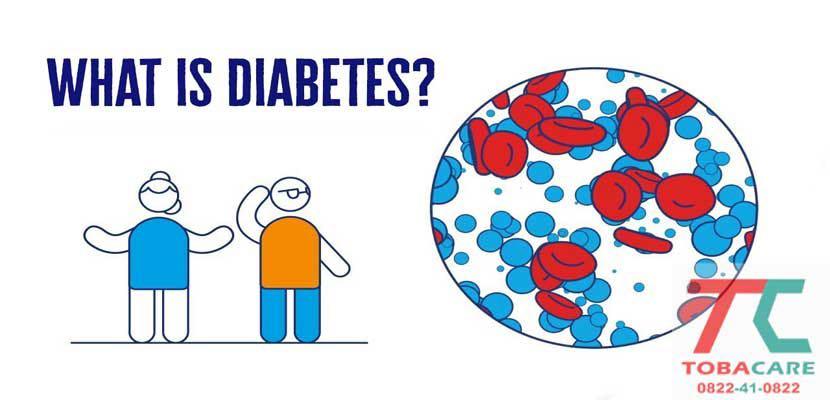 Thông tin về bệnh tiểu đường cho anh em
