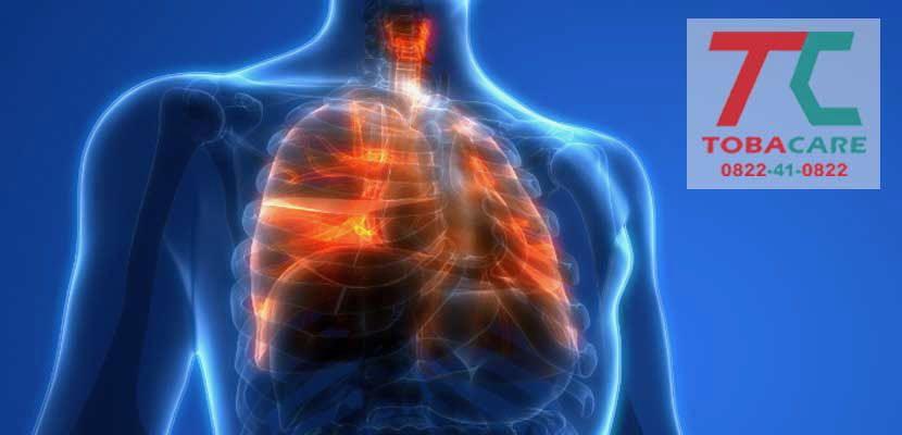 Tràn khí phổi tự phát là nguyên nhân hàng đầu của việc hút thuốc lá điện tử