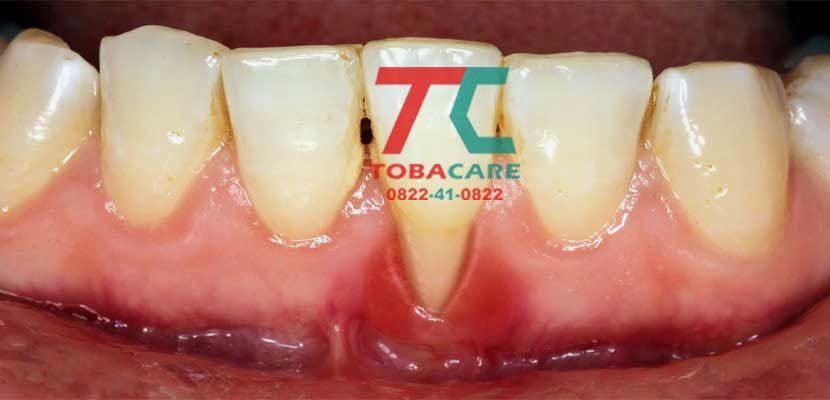 Tụt nướu chân răng do hút thuốc lá điện tử