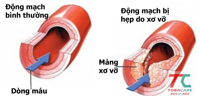 Xơ vỡ động mạch do thuốc lá