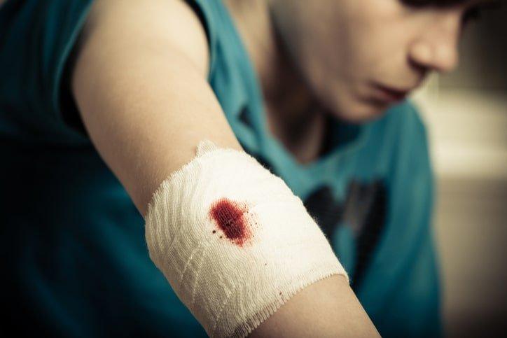Ngăn ngừa nhiễm trùng sau khi cầm máu vết thương
