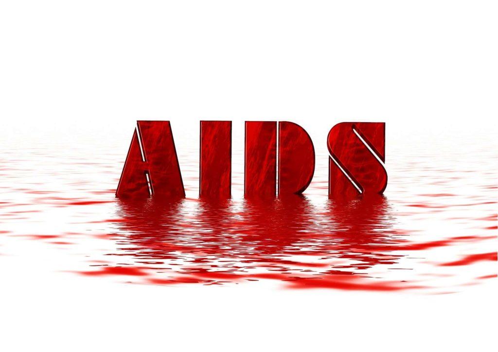 HIV aids cũng gây bệnh thần kinh ngoại biên