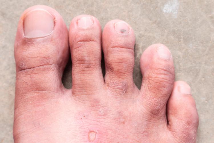 Mùi hôi chân do nhiễm nấm ở bàn chân