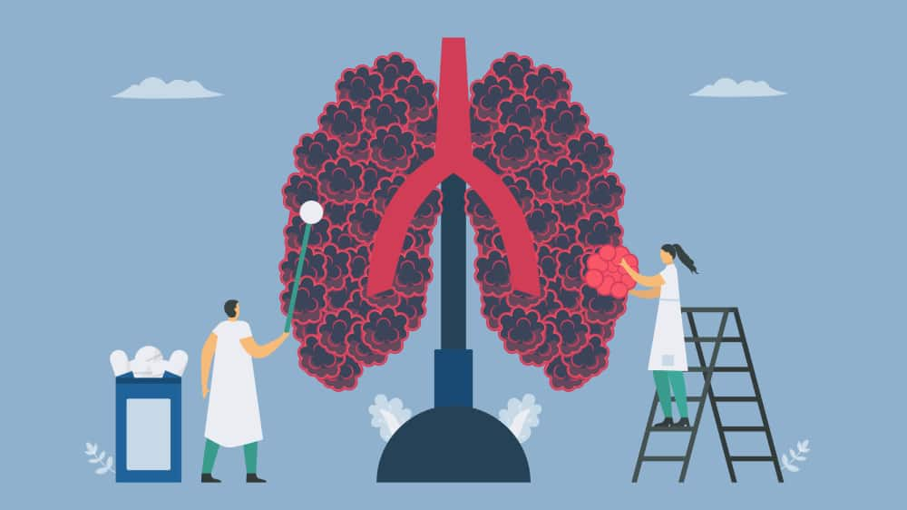 bệnh phổi tắc nghẽn mạn tính giai đoạn 4