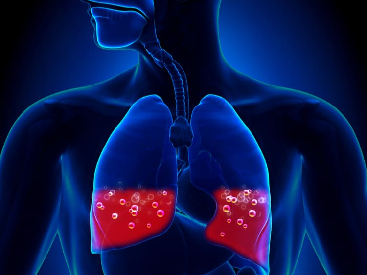 Phù phổi