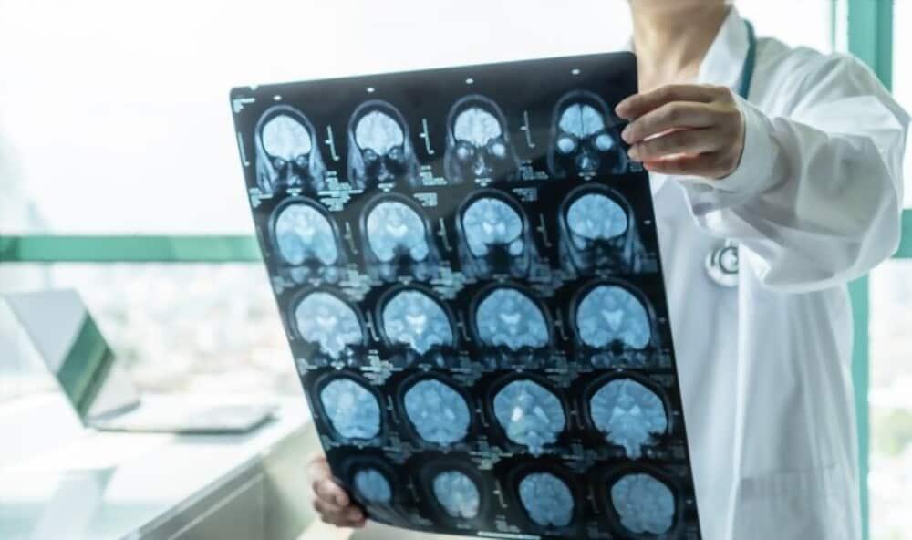 bệnh u não sống được bao lâu