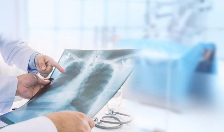 bệnh viêm phổi có nguy hiểm không