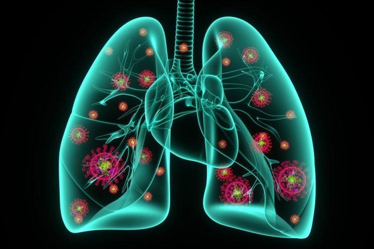 Viêm phổi là biến chứng nghiêm trọng của cảm cúm