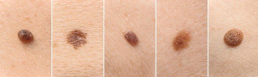 Các loại nốt ruồi bình thường và nốt ruồi báo ung thư