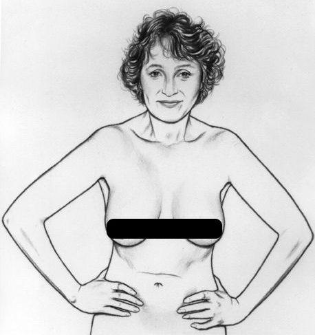 Kiểm tra dáng ngực trong cách tự kiểm tra ung thư vú