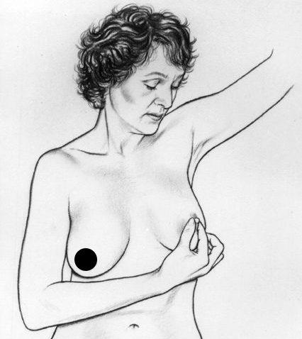 Kiểm tra núm vú trong cách tự kiểm tra ung thư vú