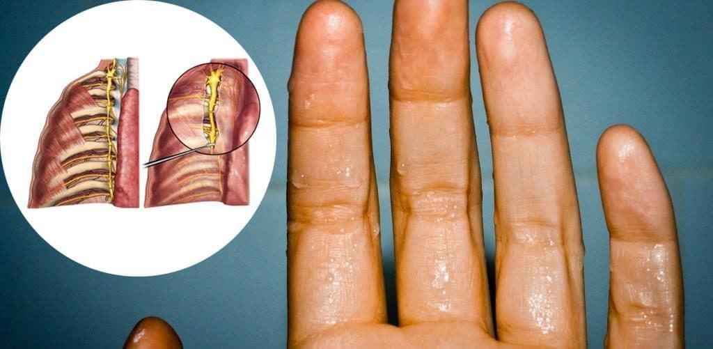 phẫu thuật cắt hạch giao cảm
