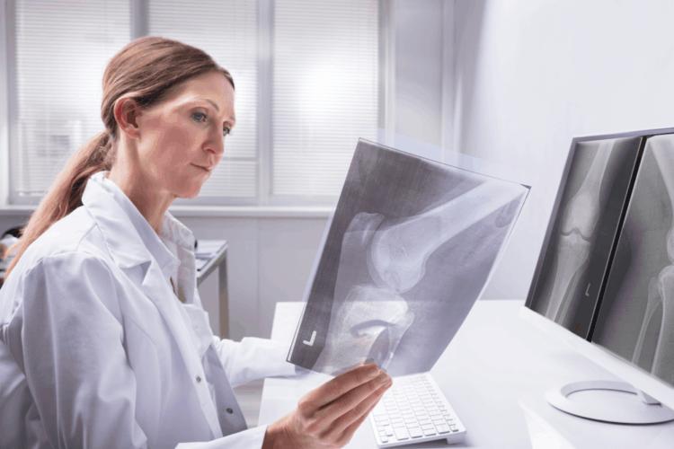 Nguyên nhân gây ung thư xương
