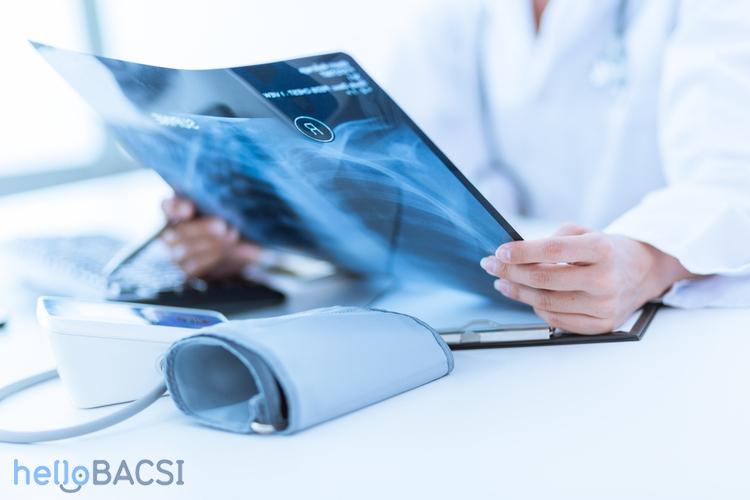 Chụp X-quang trong COPD có hiệu quả?