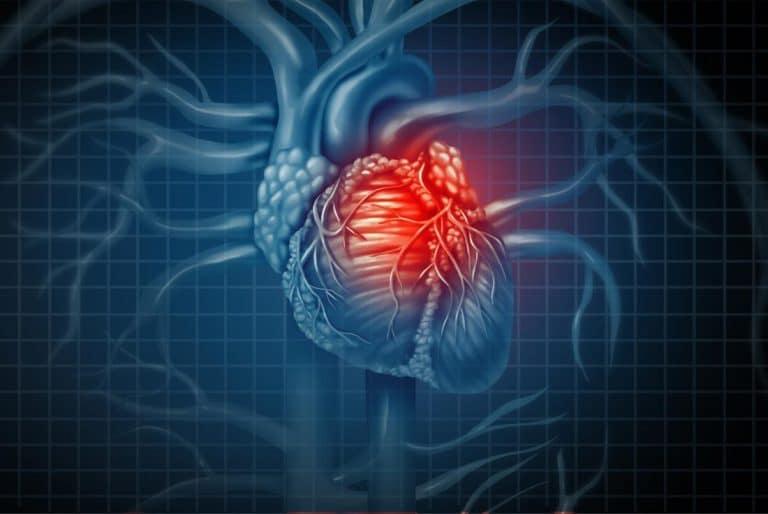 Đau tim gây tê cánh tay phải