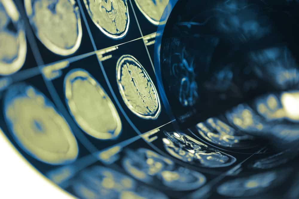điều trị chấn động não là gì