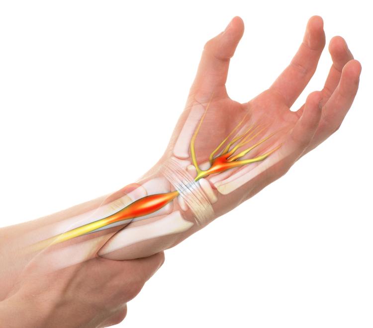 hội chứng đường hầm cổ tay