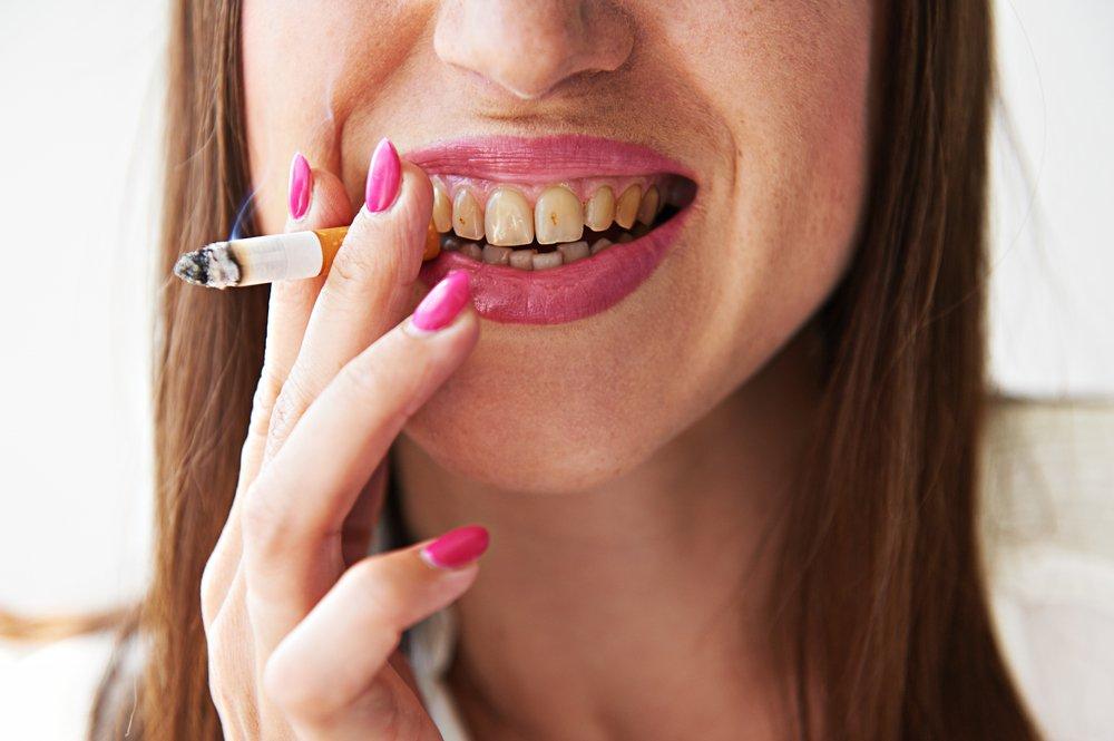 Hút thuốc lá gây vàng răng