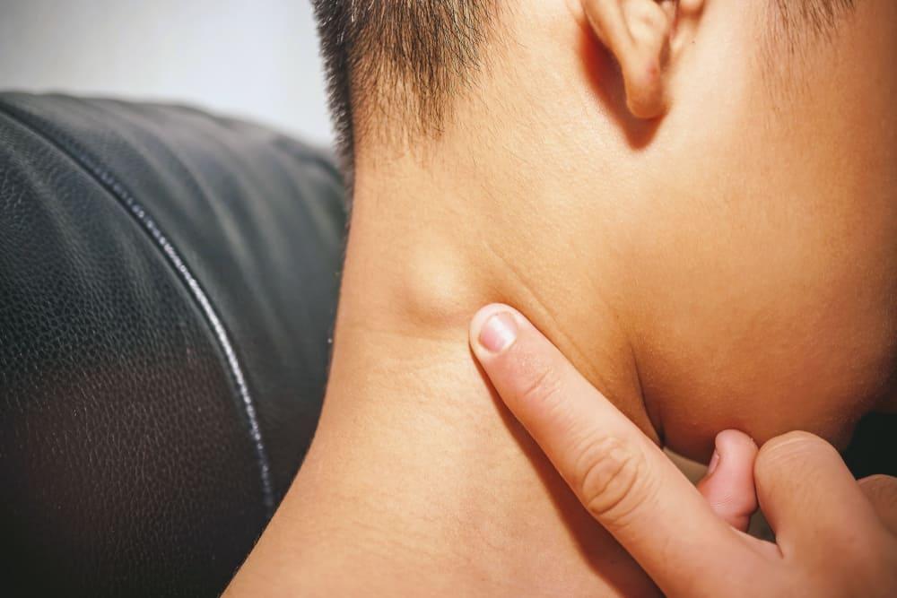Bệnh lao hạch là gì? Nguyên nhân, triệu chứng & điều trị