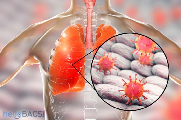 Ung thư phổi di căn xương: Tiên lượng sống và cách điều trị
