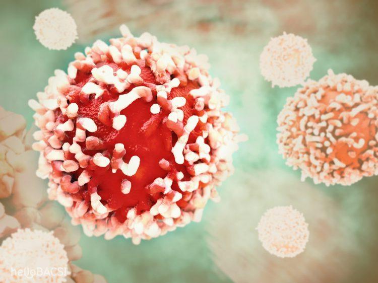 4 nguyên nhân ung thư có thể đẩy bạn vào cửa tử