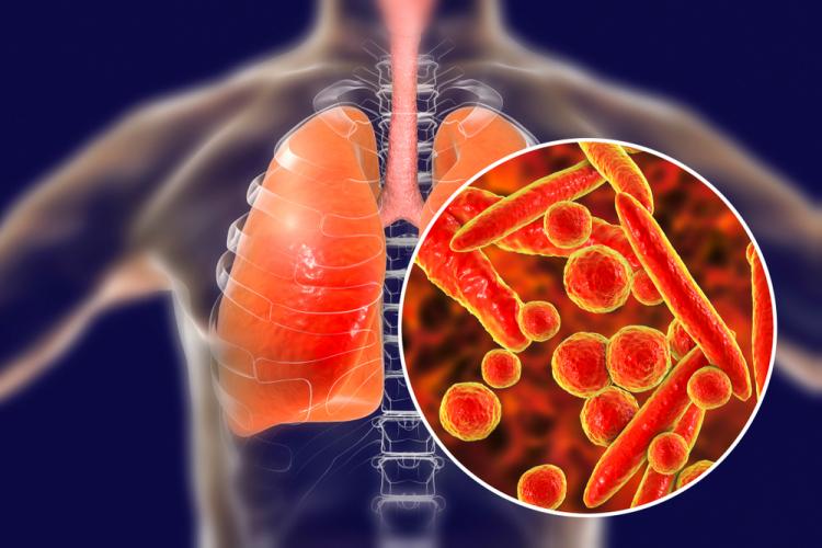 hình ảnh lá phổi bị nhiễm vi khuẩn