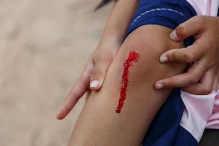 chảy máu do trầy xước nghiêm trọng
