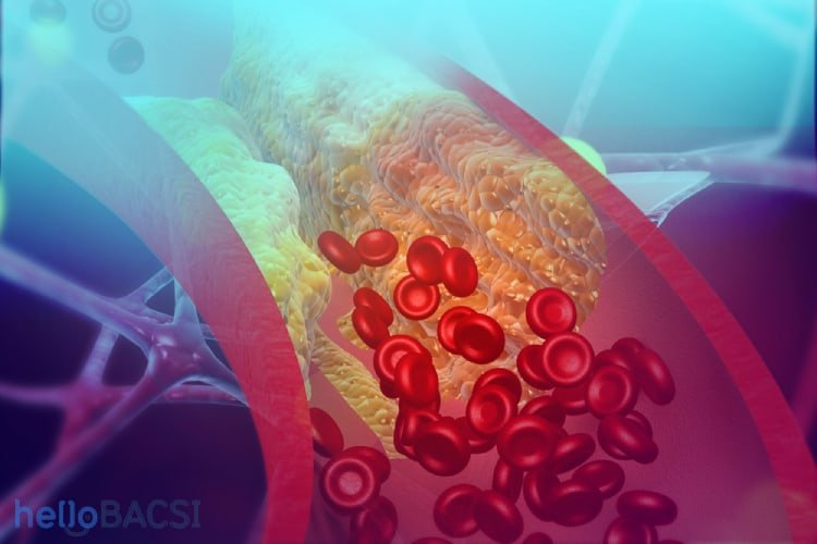 Những dấu hiệu và triệu chứng bệnh tăng lipid máu là gì?