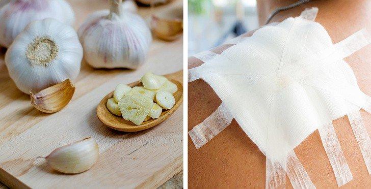 Cách chữa lành vết thương tại nhà bằng tỏi