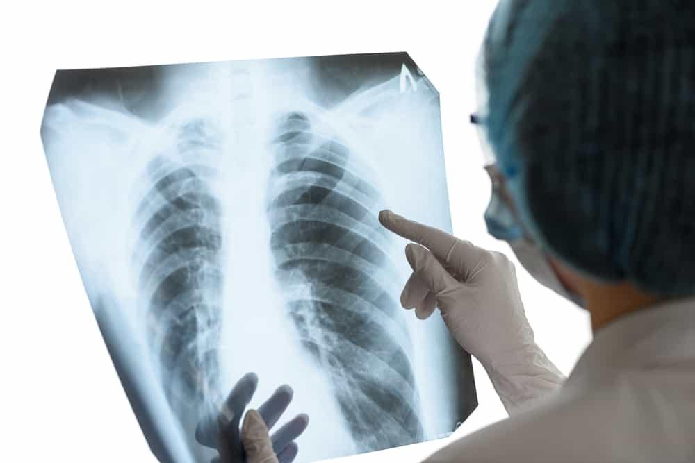 Tràn khí màng phổi và những điều có thể bạn chưa biết