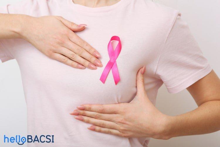 Ung thư vú giai đoạn 2