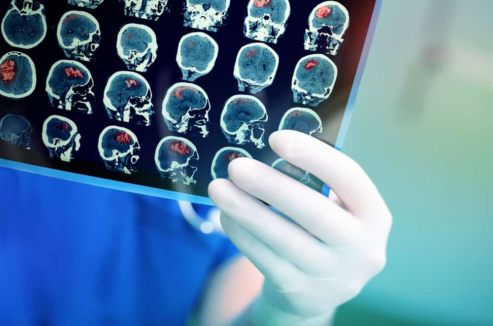 ung thư di căn lên não sống được bao lâu