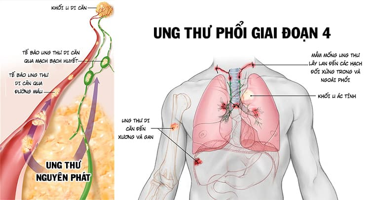 Ung thư phổi di căn xương (ung thư phổi giai đoạn 4)