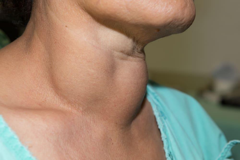 Ung thư tuyến giáp giai đoạn cuối: Dấu hiệu, điều trị và chăm sóc giảm nhẹ
