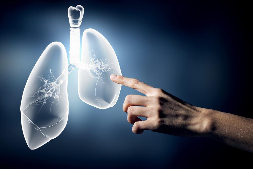 Viêm phổi không điển hình