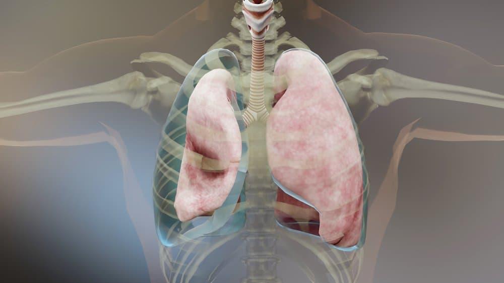 viêm mủ màng phổi